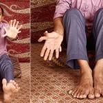 Un indio, el hombre con más dedos del mundo: 28