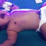 Nace en India el bebé más grande del mundo: casi 7 kilos