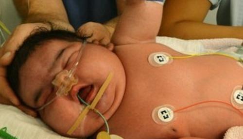 Imagen del bebé de 6,3 kilos
